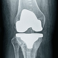 Charlottesville Orthopedic Joint Replacement