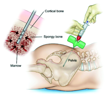 Bone Marrow Injection Stem Cell Therapy