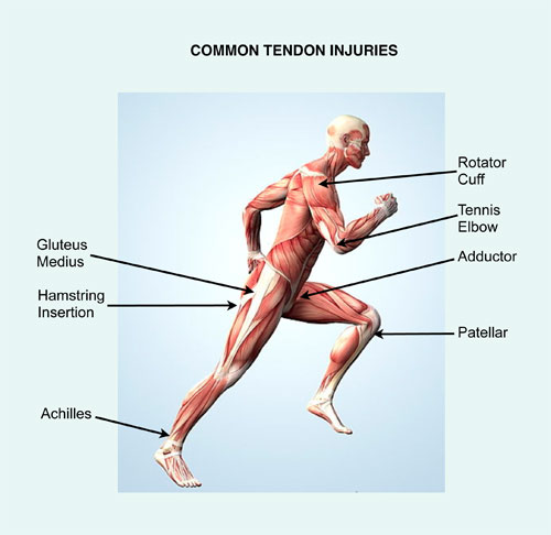 Common Tendon Injuries Treated with PRP
