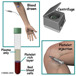 Platelet Rich Plasma Therapy Healing Injuries